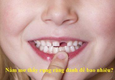 Nằm mơ thấy rụng răng đánh đề bao nhiêu?